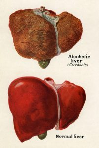 An illustration from Larousse Medical Illustre, 1914. --- Image by © GraphicaArtis/Corbis